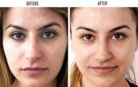 Visit Luxe MD Aesthetics for advanced laser acne treatment Las Vegas