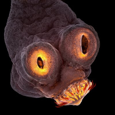 Microscope image of a tapeworm