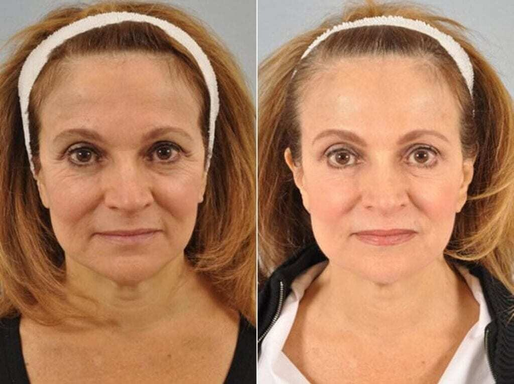 What are the uses of Botox in dentistry?
