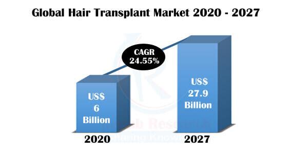 Hair Transplant Market, By Methods, Region, Companies, Forecast by 2027