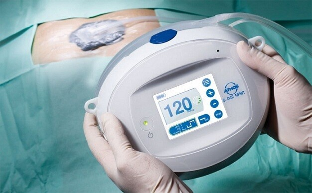 Negative Pressure Wound Therapy Market Opportunities by Types, Demand, Top Manufactures and Application in Grooming Regions