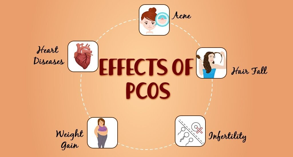 What is polycystic ovary syndrome?