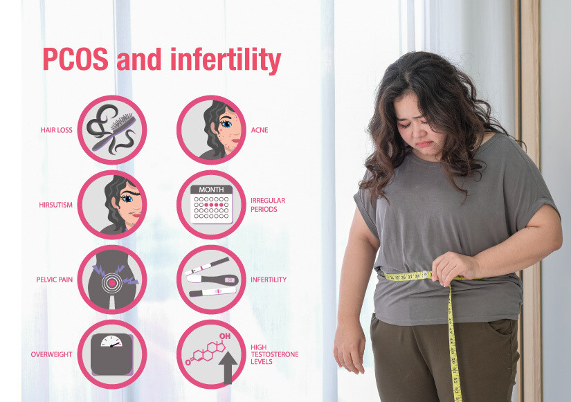 Healthy eating habits with some lifestyle changes can alleviate your PCOS symptoms & improve your fertility!