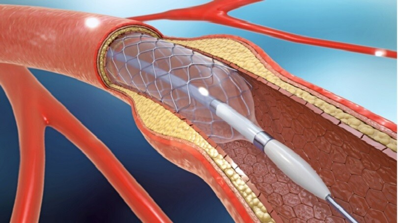 Stents Market Trends Estimates High Demand by 2028 | AMR